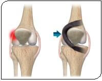 Dynamic Unloading Of The Patellofemoral Joint