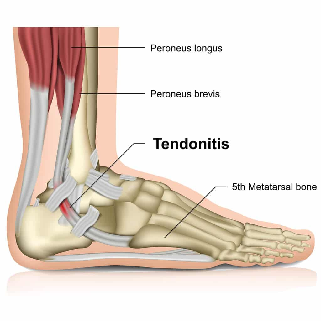 Image of an ankle affected by peroneal tendonitis