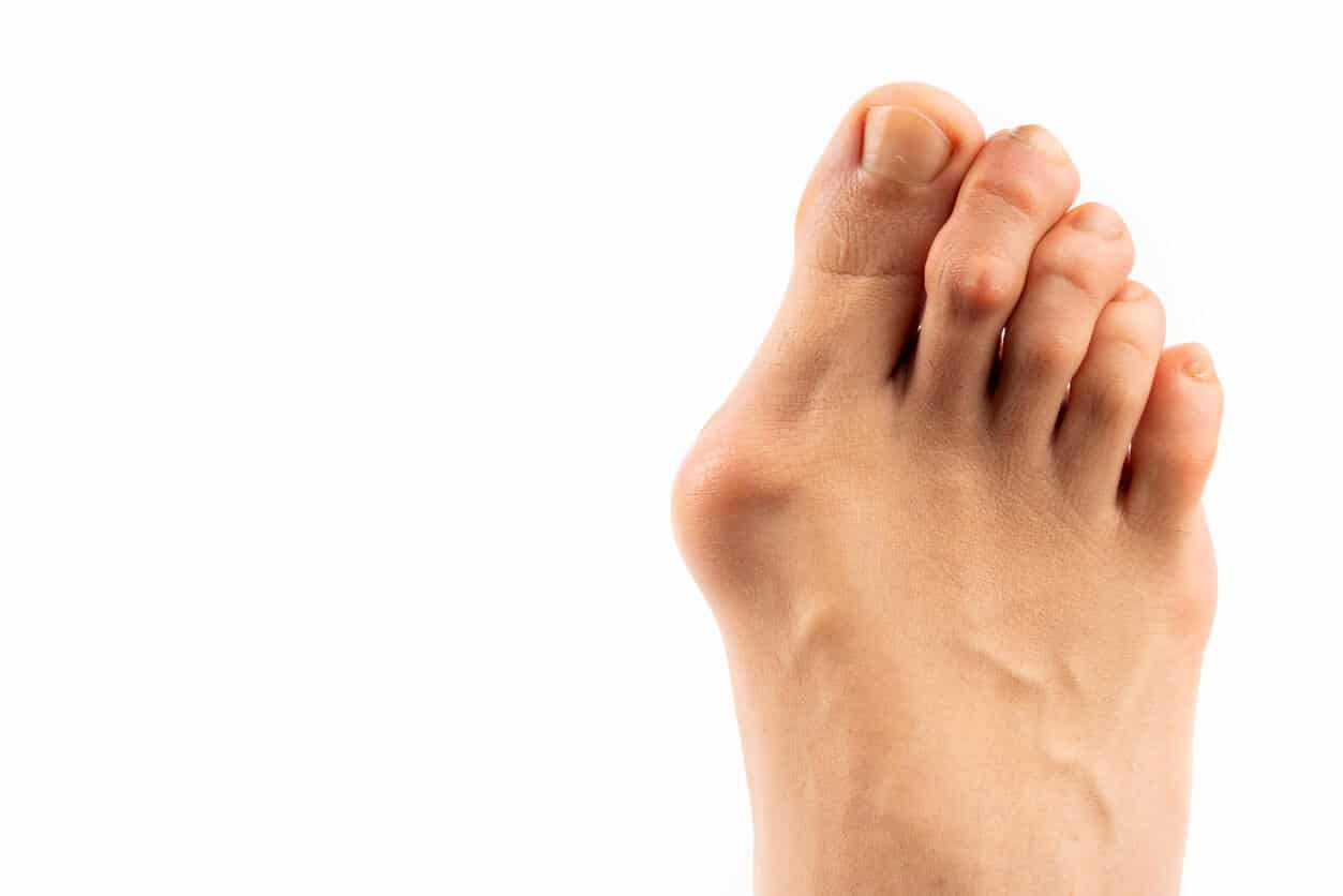 Image of a bunion
