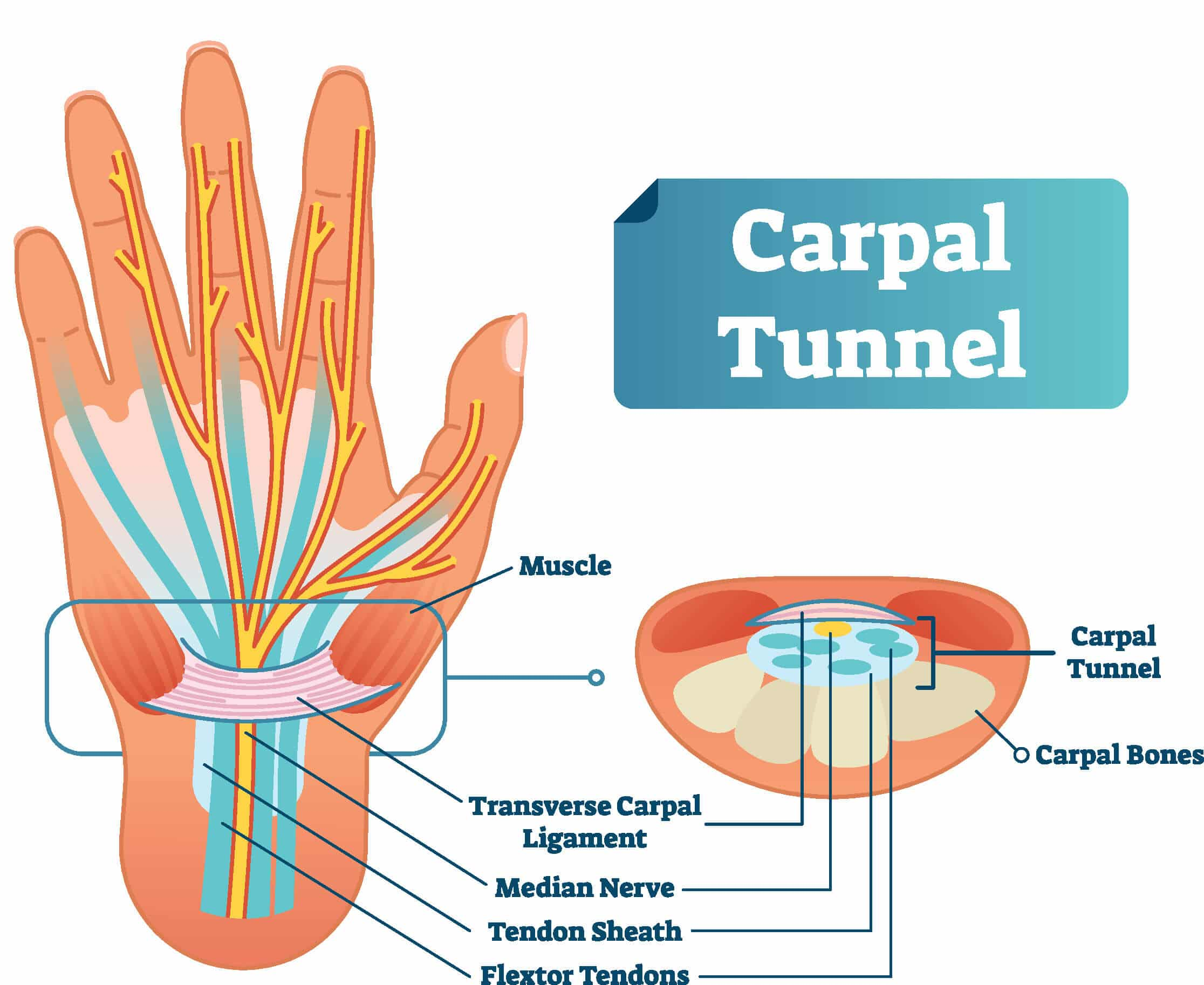 Image of the wrist and carpal tunnel