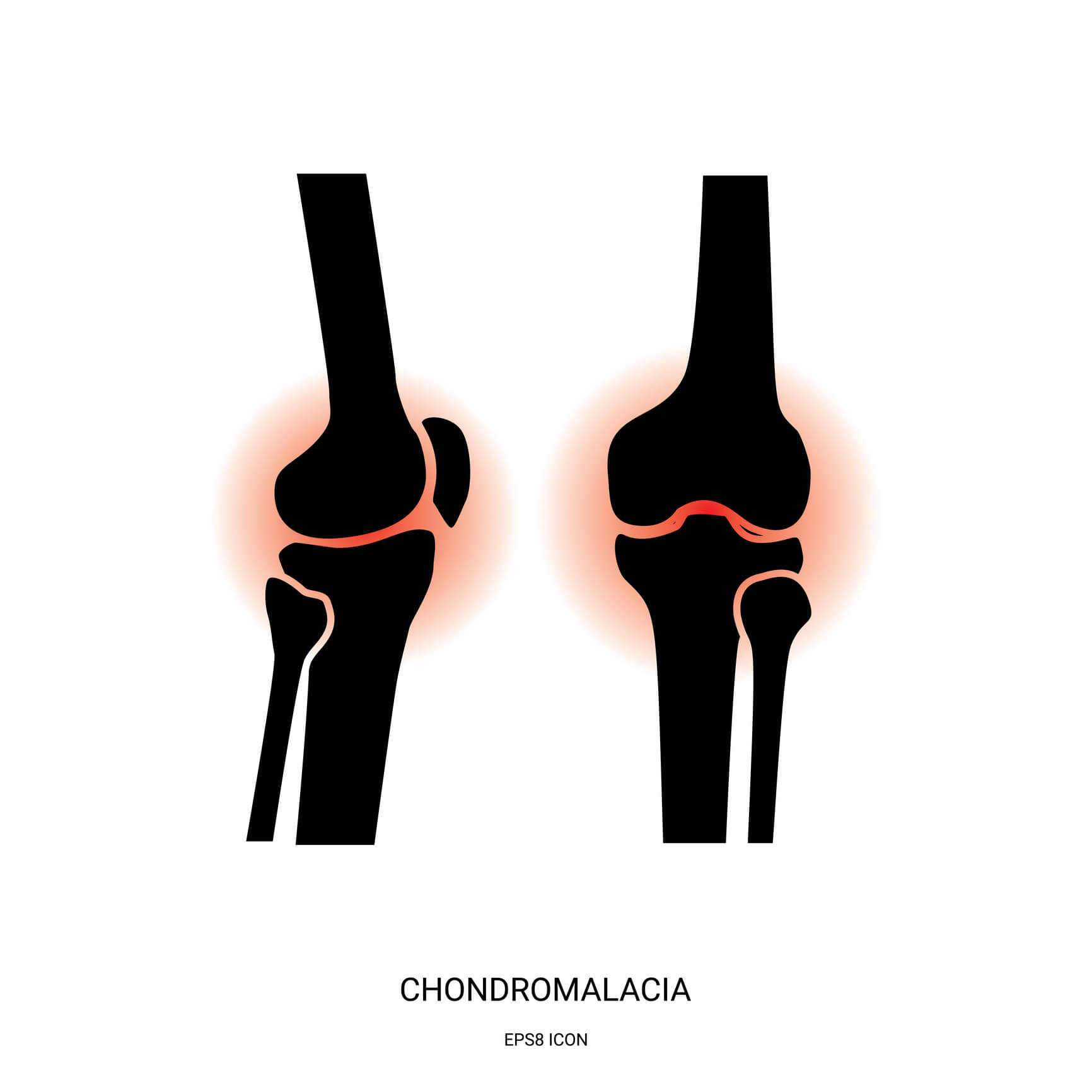 Image of a knee affected by chondromalacia
