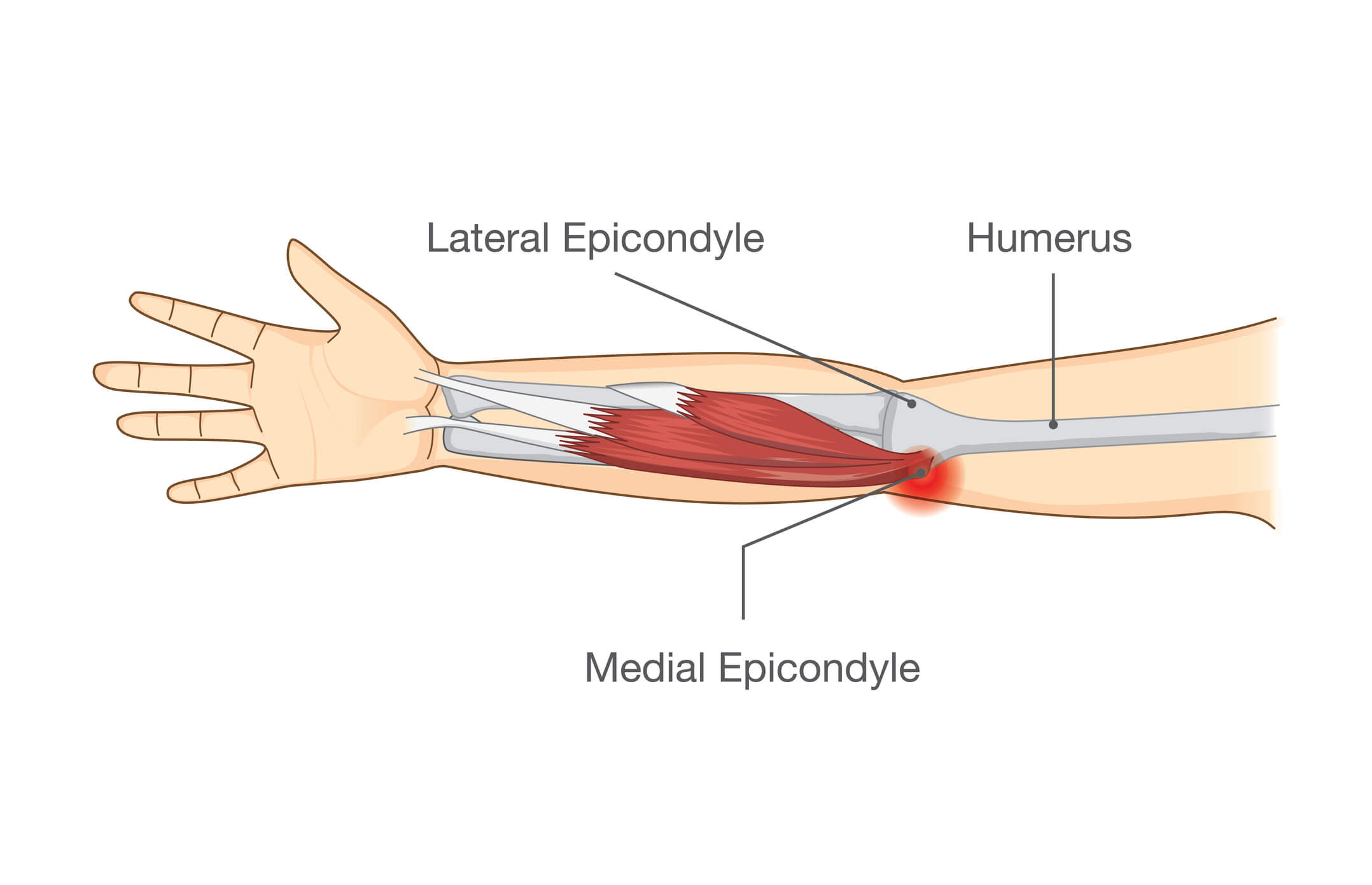 Image of the medial epicondyle that is affected by golfers elbow
