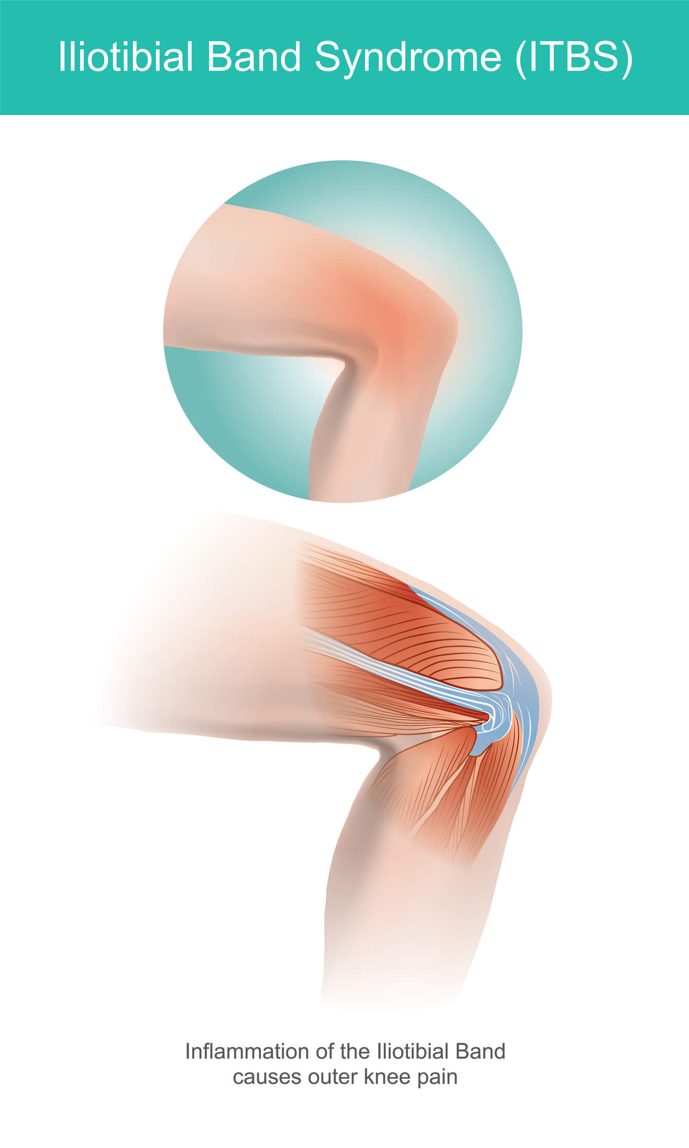 Image showing the position of the iliotibial band in the anatomy of the knee and leg, and how it band syndrome develops.