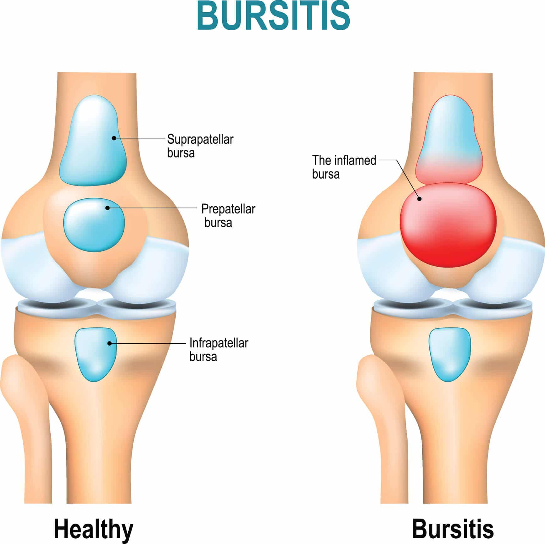 Medical diagram showing a healthy knee and one affected by knee bursitis