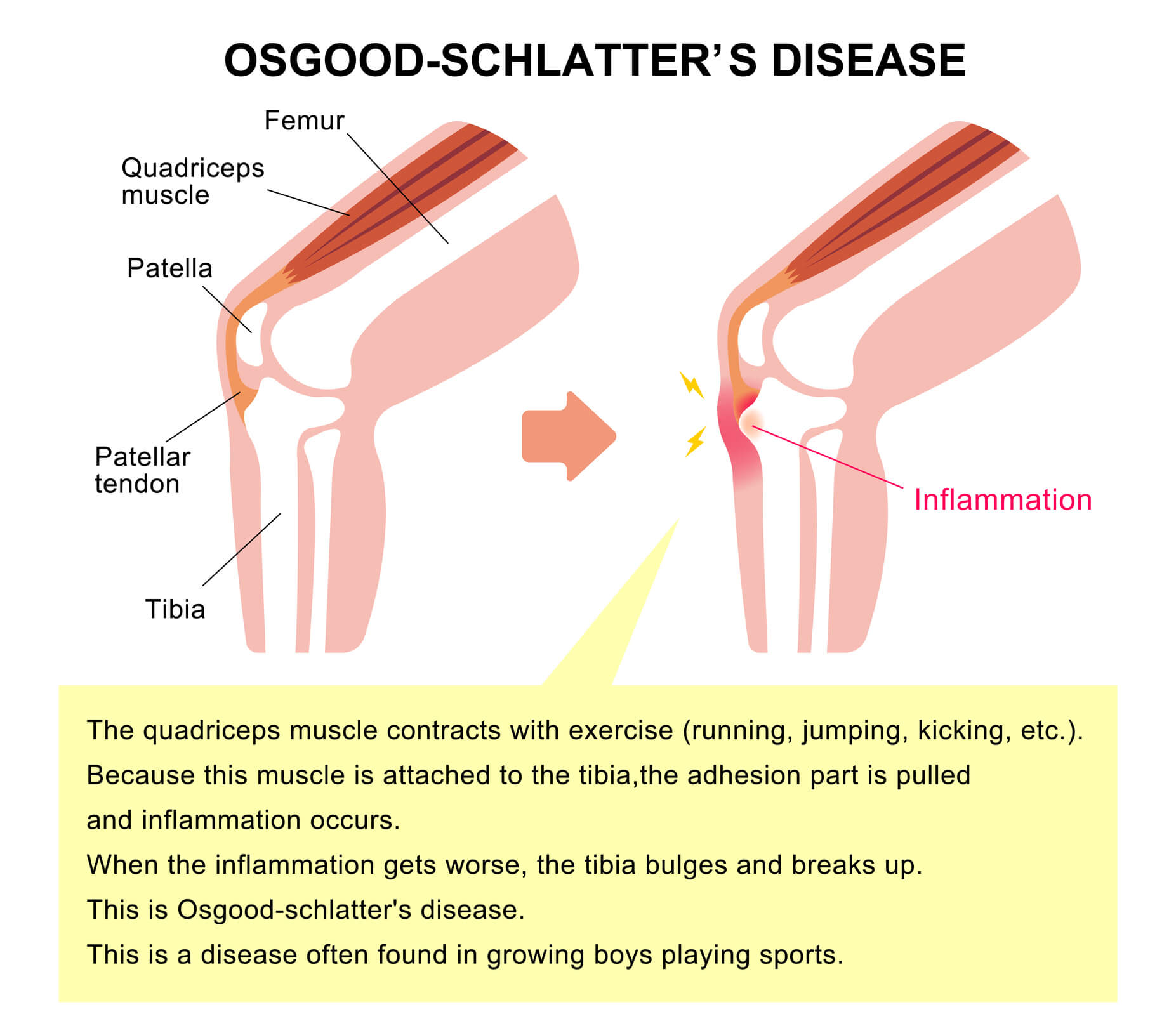 Image of a healthy knee and one affected by Osgood Schlatter Disease