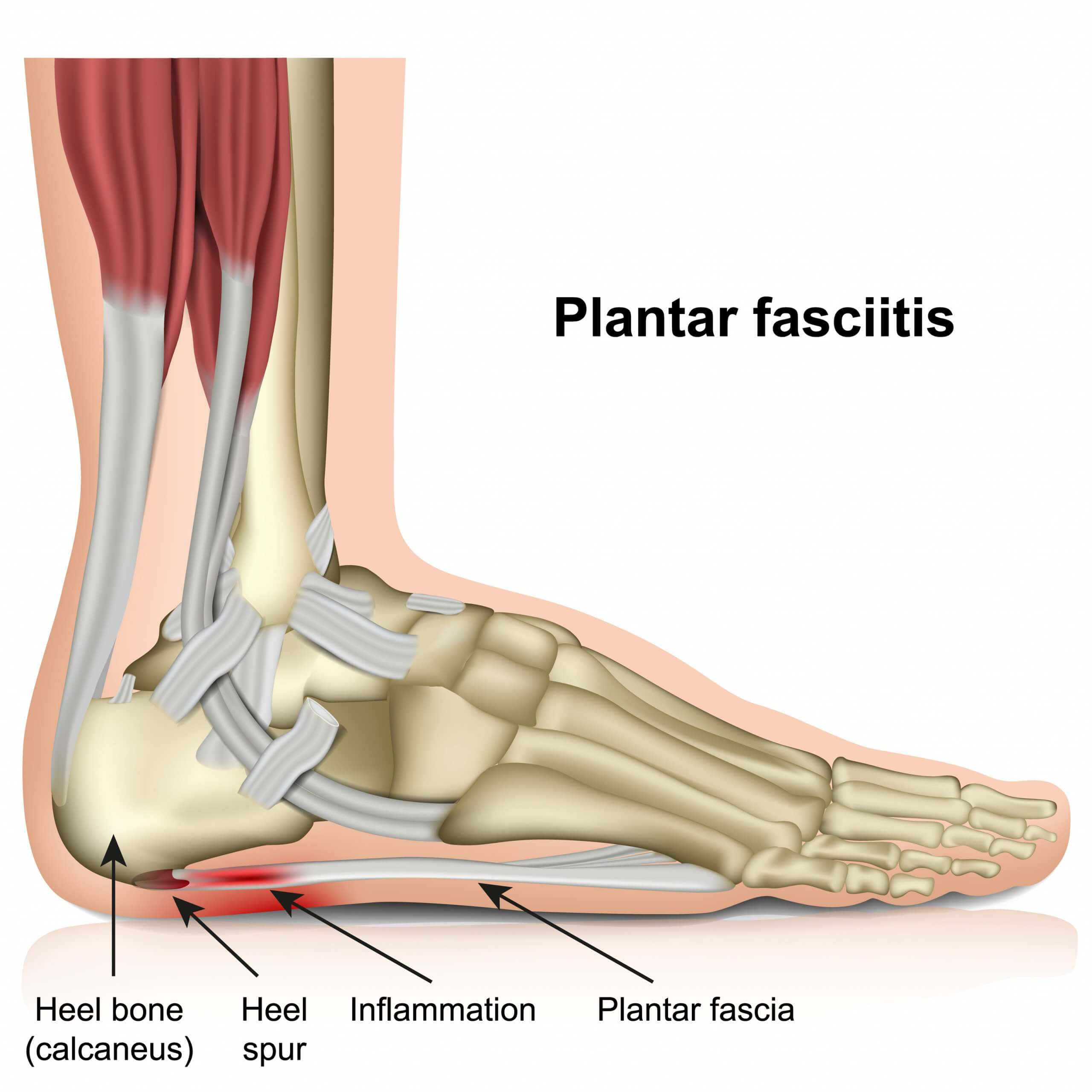 Image of a foot affected by plantar fasciitis