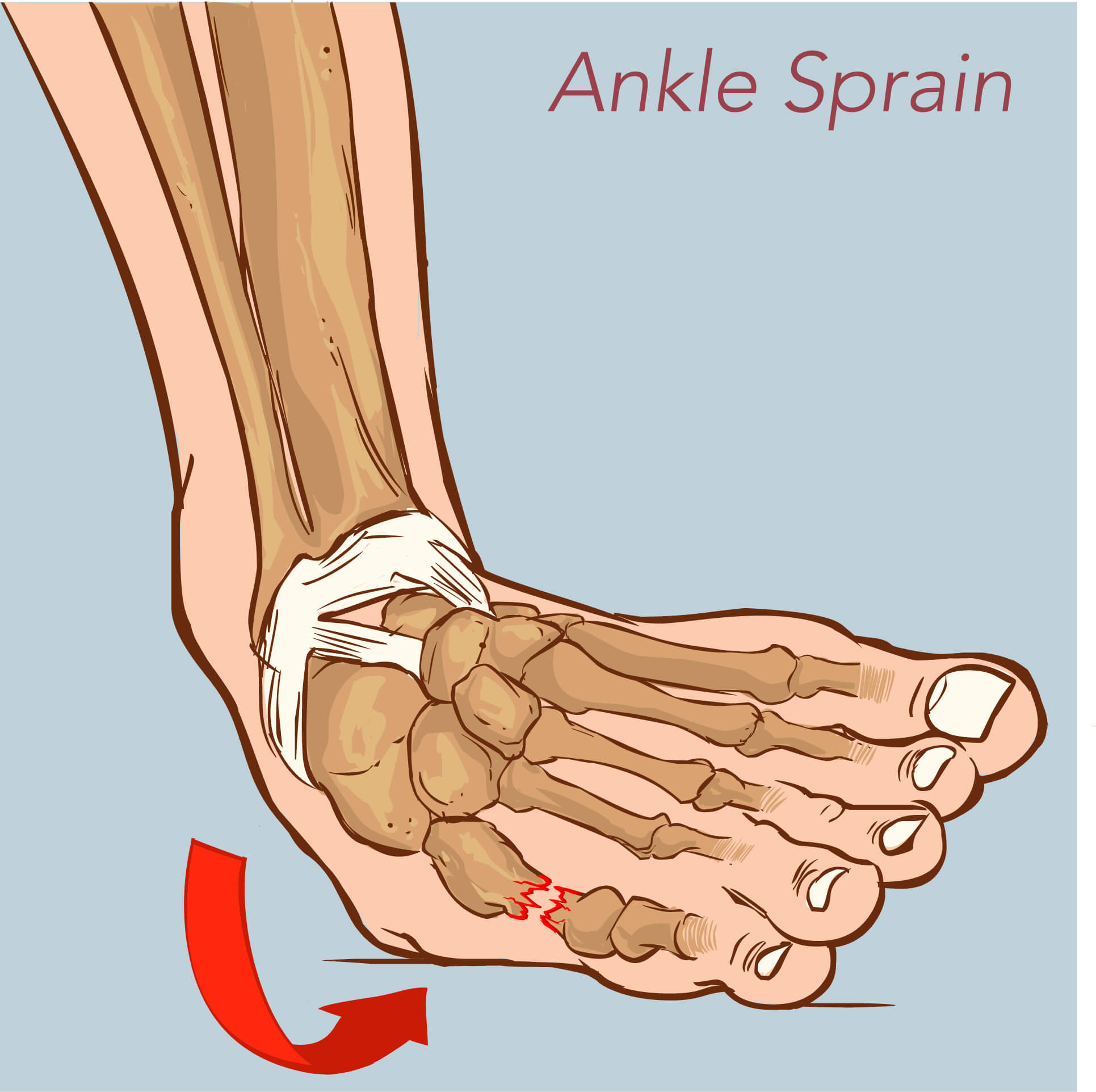 Medical Diagram showing the occurrence of a lateral ankle sprain