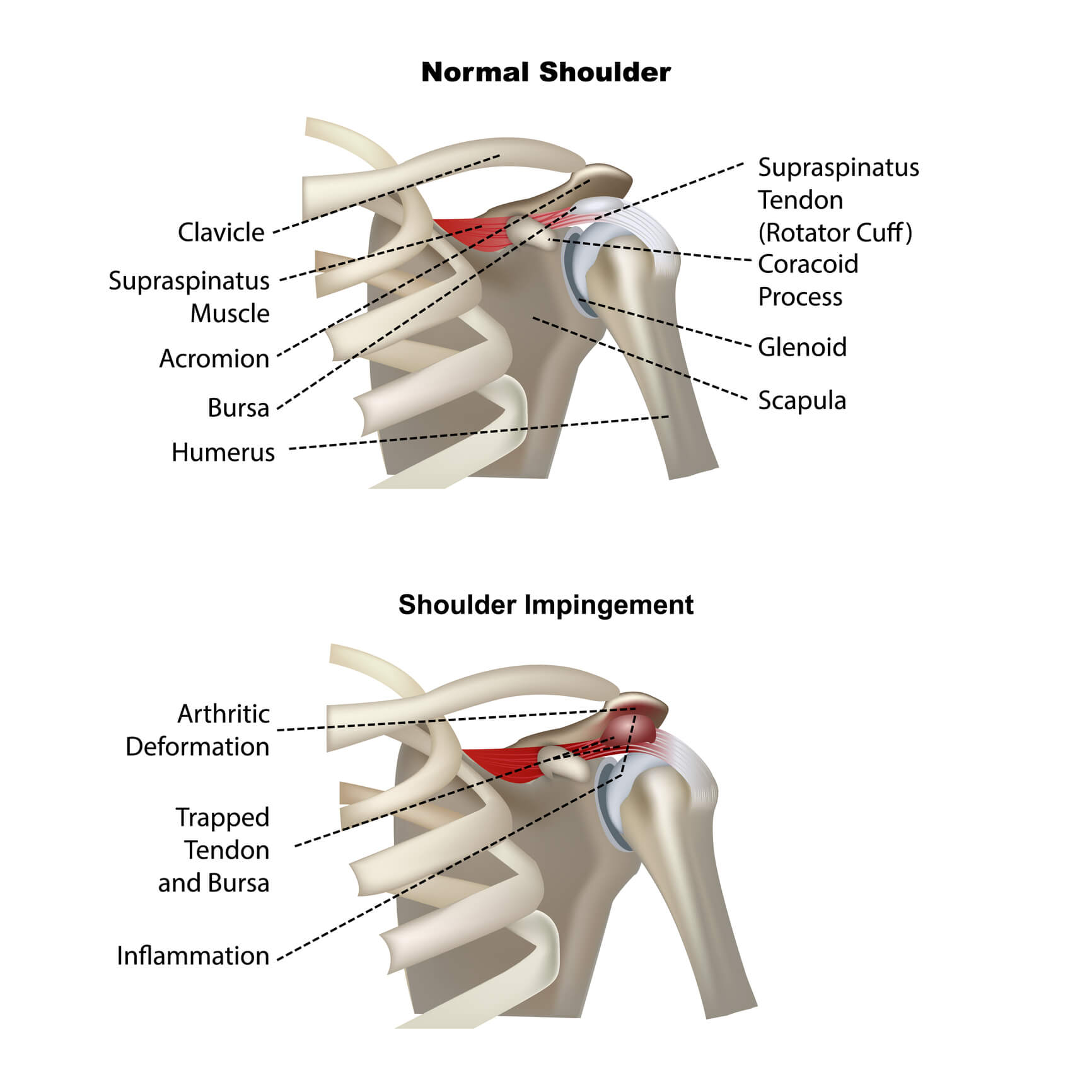 Medical Image showing a healthy shoulder and one affected by shoulder impingement