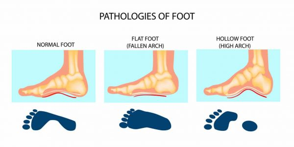 Diagam showing the appearance of feet with normal, flat and high arches. The flat arches in the centre are synonymous with flat feet.