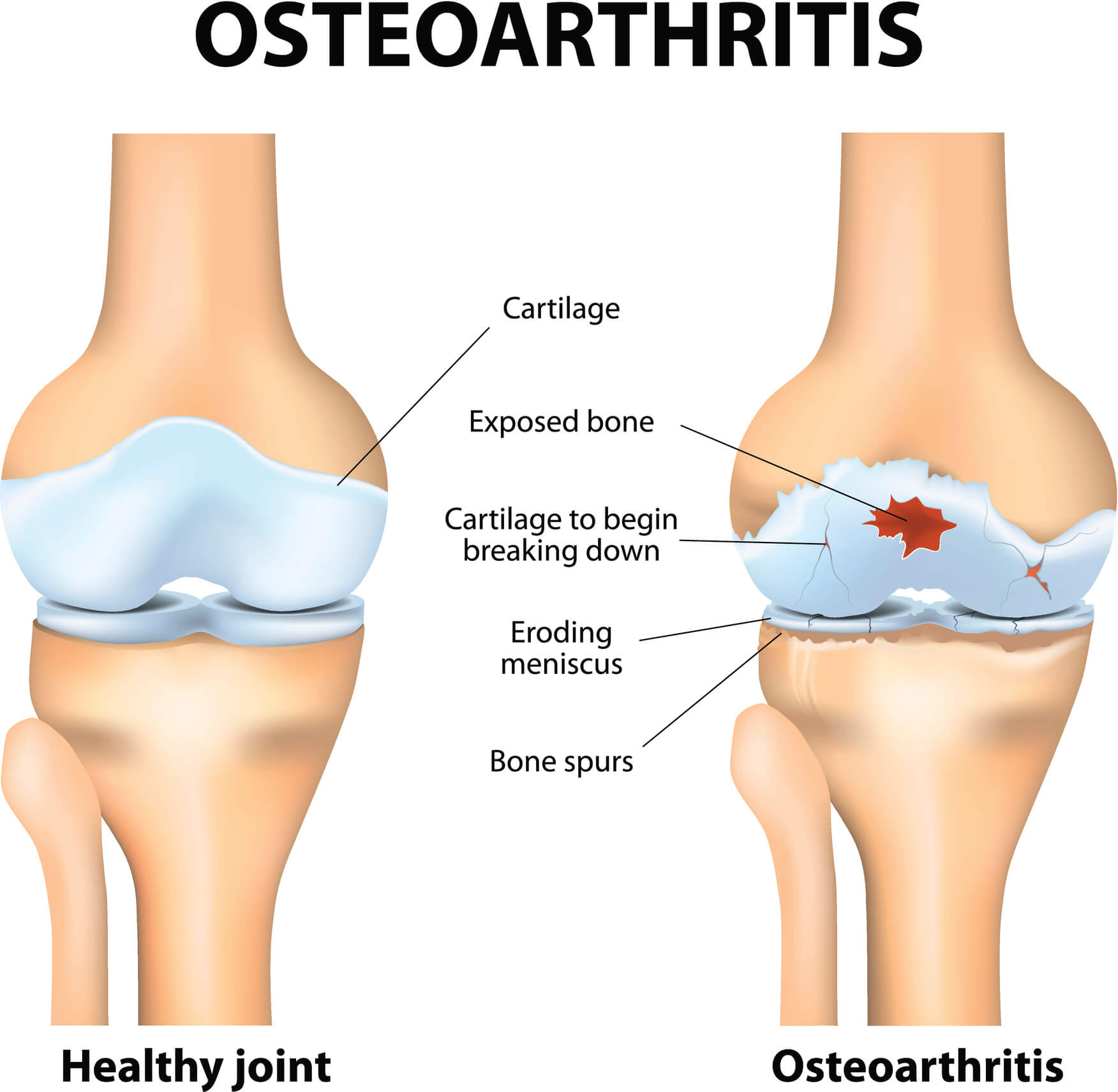 Medical Image of a healthy knee and one affected by knee osteoarthritis