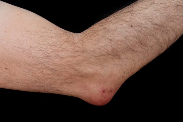 Elbow affected by olecranon bursitis, also known as student's elbow. This is a medical condition caused by the inflammation of the bursa located under the elbow's Olecranon due to strong single trauma or repetitive smaller traumas