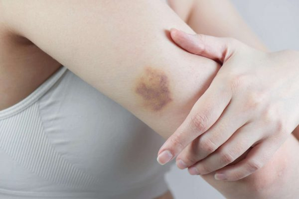 Girl shows a real contusion or bruise on her hand closeup
