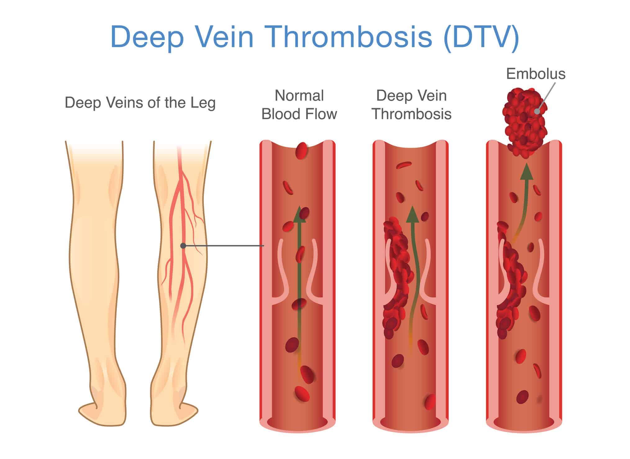 Image of the development of Deep Vein Thrombosis