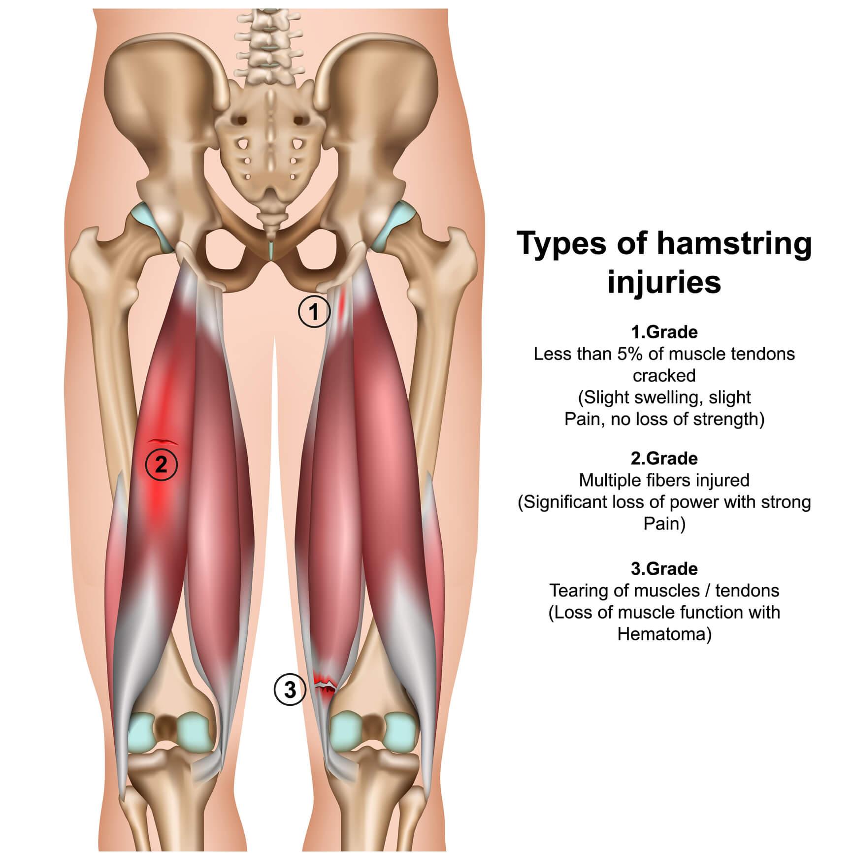 Medical image of a hamstring strain